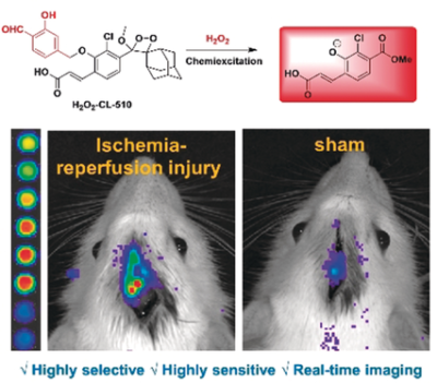 A Highly Selective and Sensitive Chemiluminescent Probe for Real‐Time Monitoring of Hydrogen Peroxide in Cells and Animals